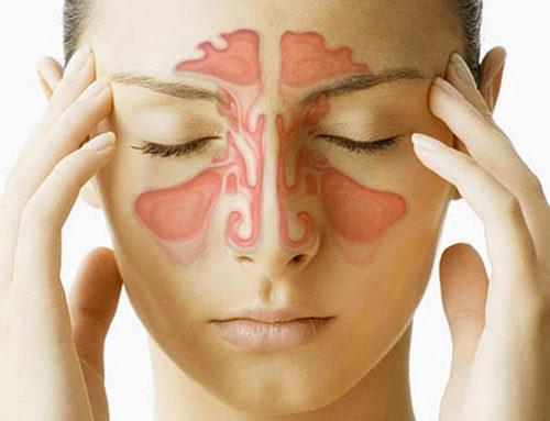 Endoscopia – nasale
